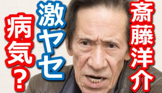 【画像】斎藤洋介が激ヤセ!顔写真が老けた理由は病気が原因?若い頃が息子に似てる?